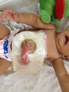 beba stoma